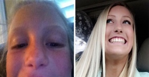 Dişlerin Dış Görünüşü Ne Kadar Değiştirdiğini Kanıtlayan Fotoğraflar