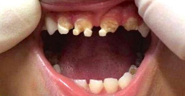 Diş Doktoru Bu İçeceği Çocuklarınıza Kesinlikle Vermeyin Diye Uyardı
