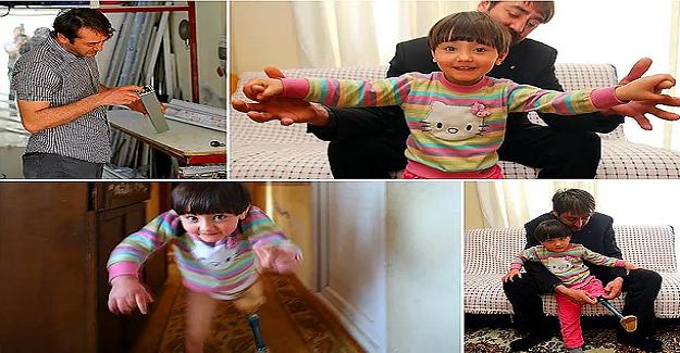 Yanlış Tedavi Sonucu Bacağı Kesilen Kızına Yaptığı Düzenek Sayesinde, Kızına Yürümeyi Öğreten Baba