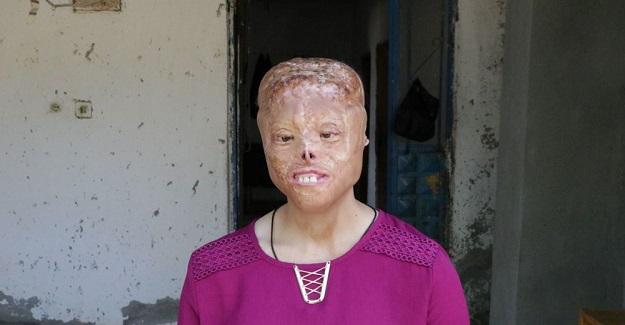 1.5 Aylıkken Yüzü Yanan Leyla Yüz Nakli Bekliyor: Liseye Kadar Öğretmeni Sayesinde Okuduğunu Söyledi