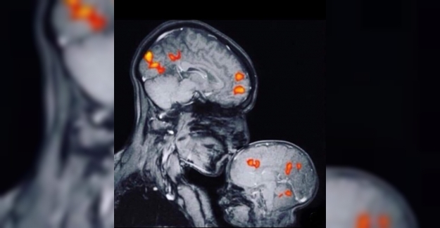 Bir annenin bebeğini öperken çekilen bir MRI görüntüsü... Anne ile bebeğin bağını gösteren ilk MRI... Nörolog Rebecca Saxe ve 2 aylık oğluna ait...⠀