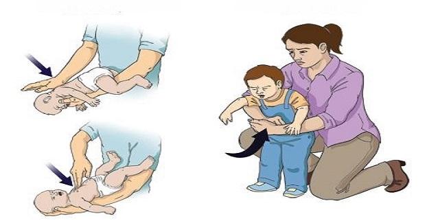 Çocuğunuzun Boğazına Yabancı Cisim Kaçtığında İlk Yardım Nasıl Yapılır?