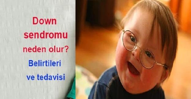 Down Sendromu nedir? Down Sendromu Nasıl Anlaşılır?