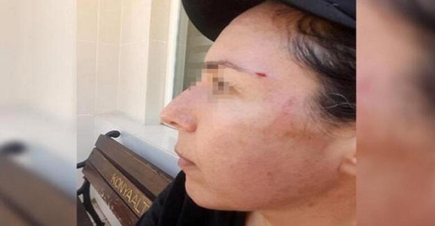 Kadın Öğretmen Komşusu Tarafından Saldırıya Uğradı