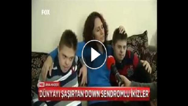 Pes Dedirten Olay: Down sendromlu çocuklar ısırır mı? (Down sendromlu çocukları olan annenin başına gelenler)